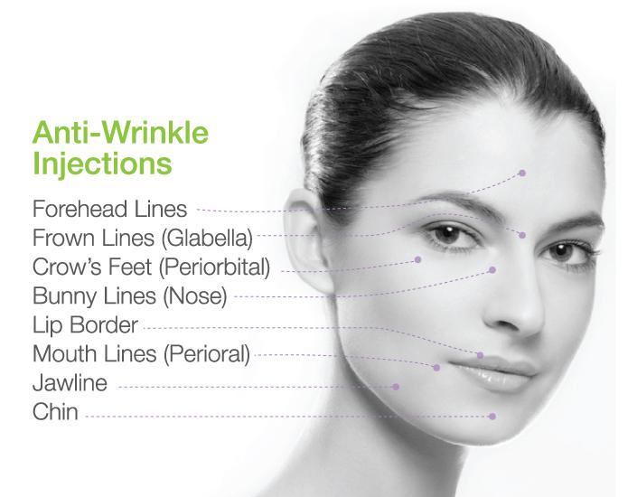Anti Wrinkle Areas