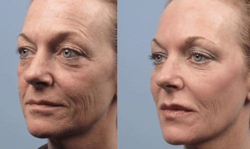 Ultherapy Hifu Non Surgical Face Neck Eye Skin Lifting