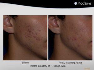 Picosure SkinRevit Acne scar