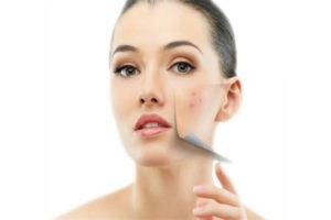 remove-wrinkles-600×400