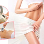Cryolipolysis Fat