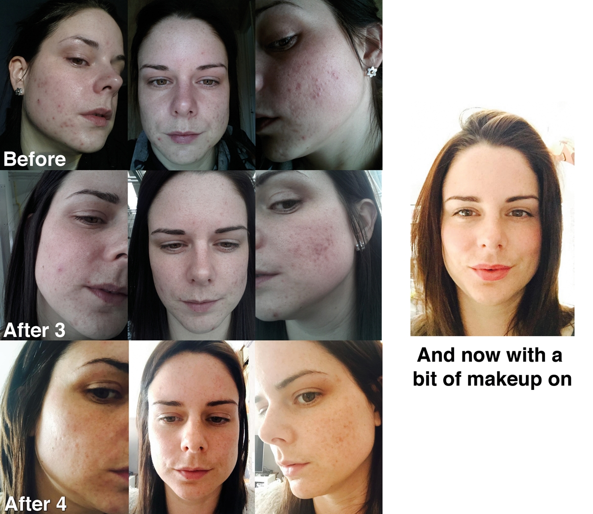 IPL Laser Treatment For Acne scarring