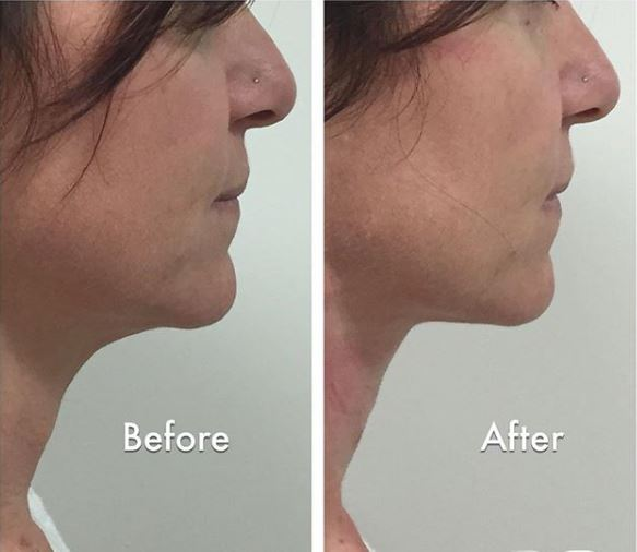 Thread Lift - Non Surgical Threadlift at The Aesthetic Laser Centre